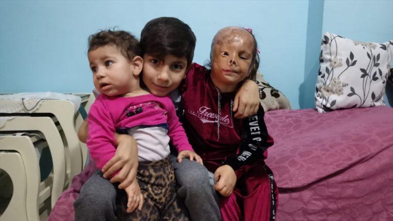 Bebekken yüzü yanan Dilara'nın ailesi yardım eli uzatılmasının sevincini yaşıyor